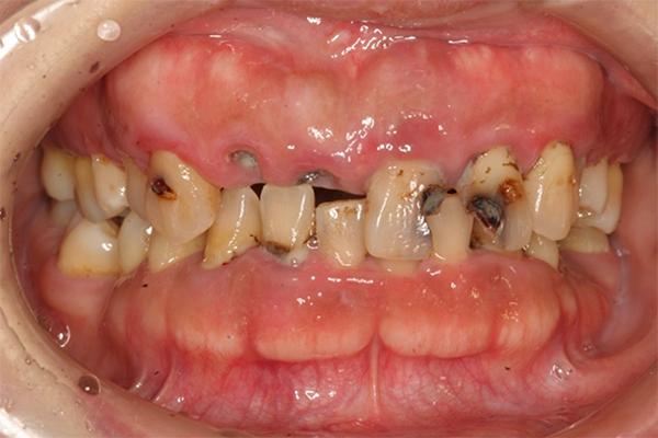 代表的な症例02「少数歯欠損」 浜松の歯医者・インプラントなら 石川歯科